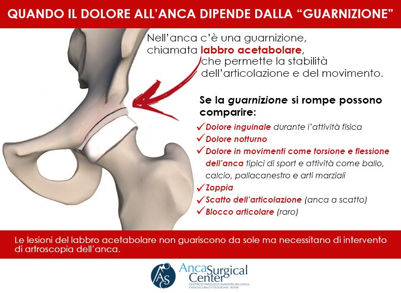 Labbro acetabolare Anca Surgical Center