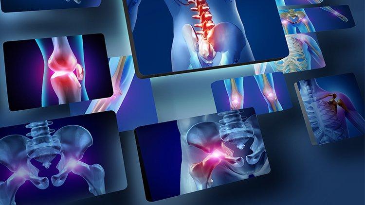 Lo sai che l'osteoporosi è transitoria se si tratta di algodistrofia?