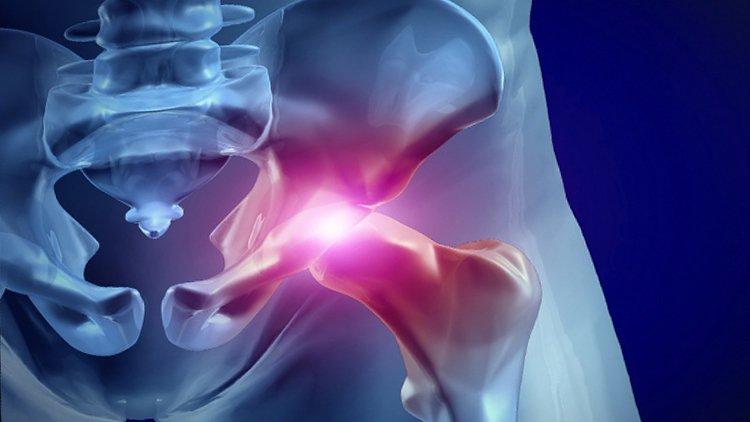 Anca: lo sai che le infiltrazioni rallentano l'artrosi?