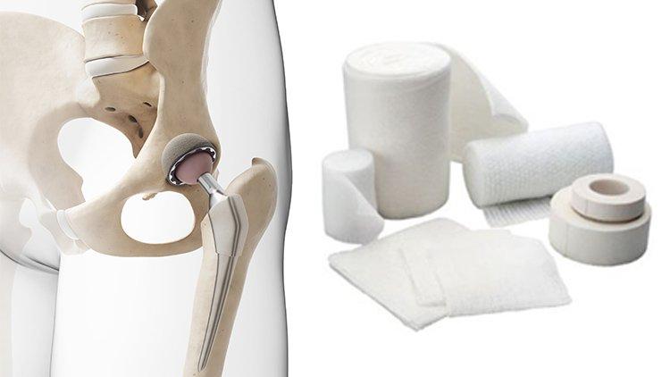 Protesi d'anca, come medicare la ferita dopo l'intervento